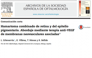 Echevarría L, Villena O, Nievas T, Bellido R. [Combined hamartoma of the retina and retinal pigment epithelium. Anti-VEGF treatment of the associated choroidal neovascular membranes]. Arch Soc Esp Oftalmol. febrero de 2015;90(2):87-93. PMID: 25499584