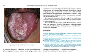 Pérez-Belmonte LM, Gómez-Moyano E, Herrero-Lifona L, Jiménez-Oñate F. [Verrocous mass on the tongue: oral florid papillomatosis]. Enferm Infecc Microbiol Clin. febrero de 2015;33(2):135-6 PMID: 25037616