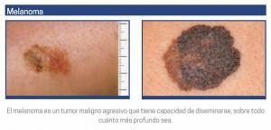 melanoma 3