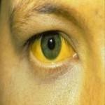 dia_mundial_contra_la_hepatitis-4775_160_square