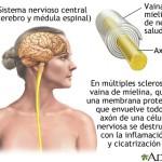 esclero