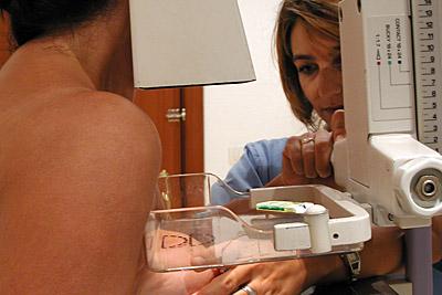 Realización de una mamografía