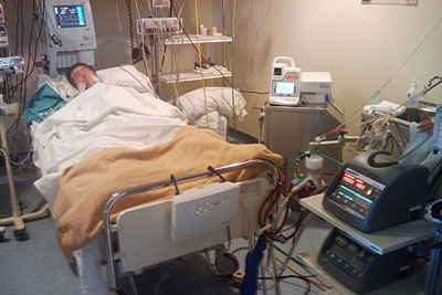 El paciente con el dispositivo que realiza su función cardiopulmonar