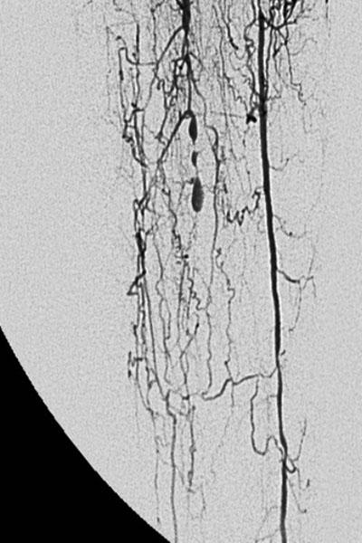 Radiografía vascular de la pierna del paciente antes de recibir el tratamiento.