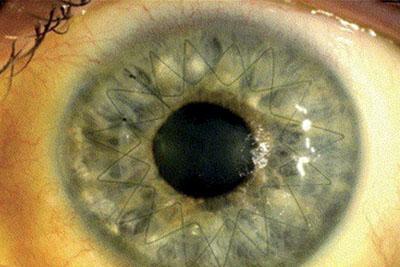 Imagen del implante suturado