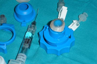 Preparación de la córnea del donante