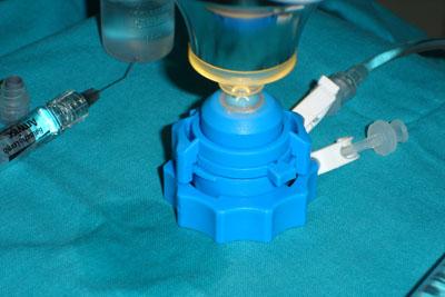 Tratamiento que recibe la córnea del donante antes del implante