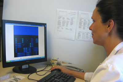 Alergóloga del Hospital Reina Sofía leyendo resultados de un diagnóstico molecular