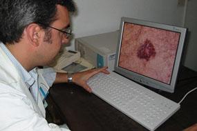 Los centros de Atención Primaria registran 5.155 consultas de teledermatología en el primer semestre de 2018