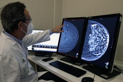 El doctor Raya señala la mamografía con contraste