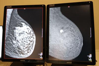 Diferencia entre mamografía convencionl (izquierda) y con contraste (derecha)