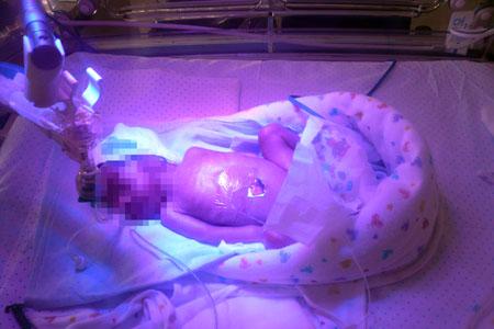 Intensivos neonatales