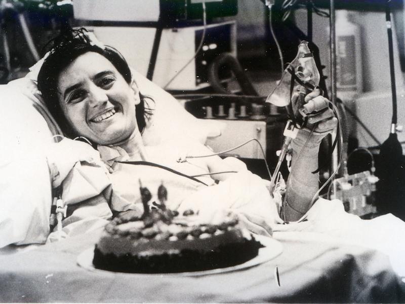 Paciente trasplantada. 1993