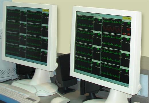 Monitorización del registro electrocardiográfico