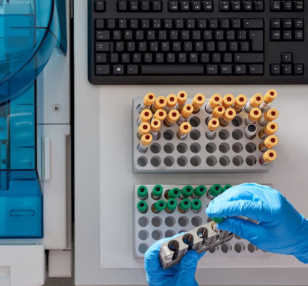 Foto de unas manos manipulando unas muestras en laboratorio.