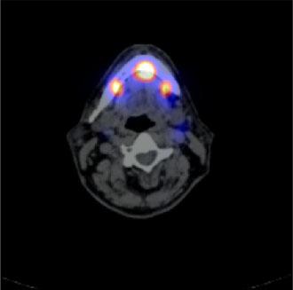 La técnica del ganglio centinela permite una estadificación del tumor más sensible y precisa facilitando la toma de decisiones