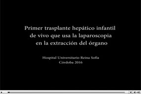 Video trasplante hepático infantil